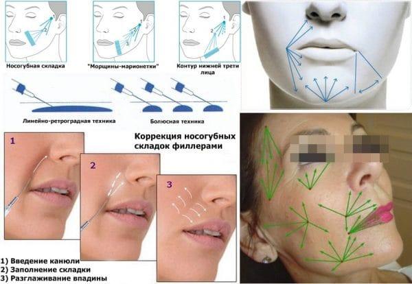 Рейтинг филлеров для губ: характеристики, плюсы и минусы, отзывы и цены